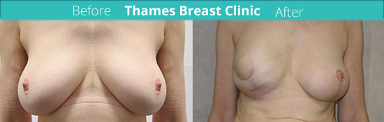 thames-breast-clinic-reconstruction-surgery-case-6